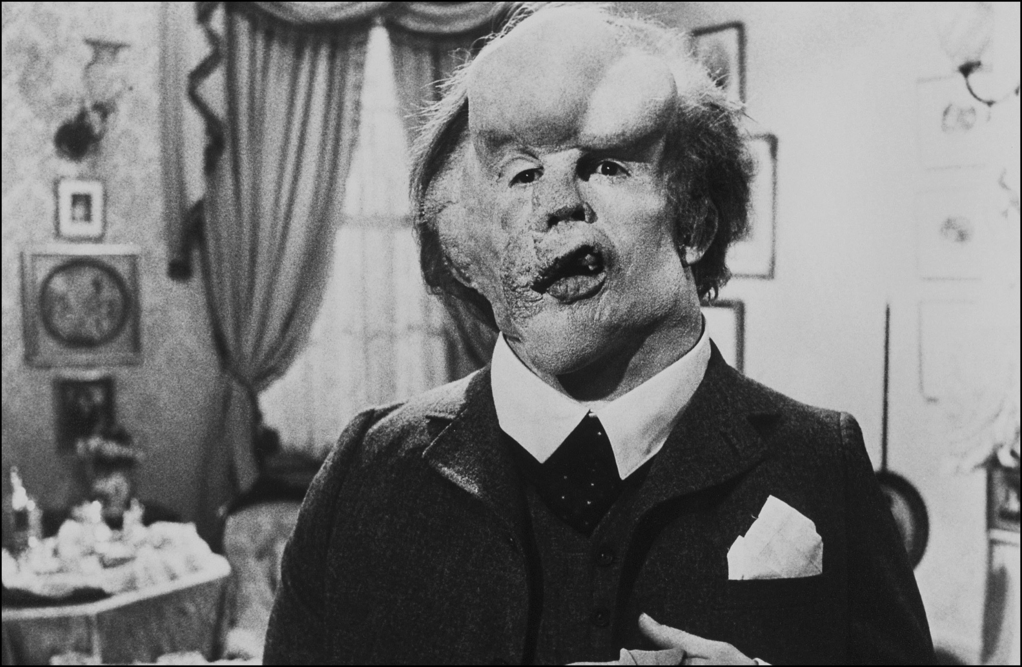 The Elephant Man compie 40 anni e torna al cinema: com'è nato il film di David Lynch